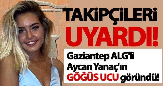 Aycan Yanaç'ın göğüs ucu göründü! Sosyal medya çalkalandı