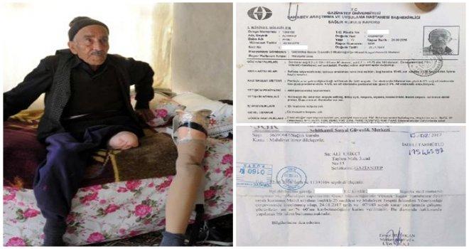Gaziantep'te protez bacaklı yaşlı, malulen emekli olamadı